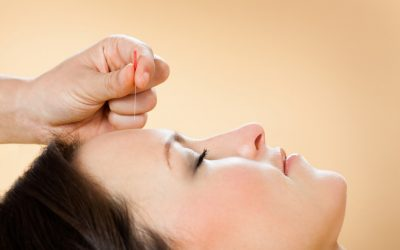 Things to Consider Before You Go for Your First Acupuncture Session