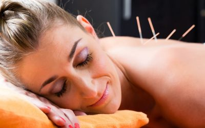 Some Things to Know When Selecting an Acupuncture Expert in Toronto