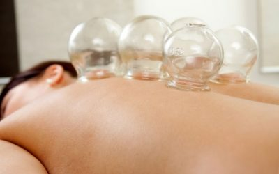 Top Reasons Why Acupuncture Is a Preferred Choice for Body Treatment